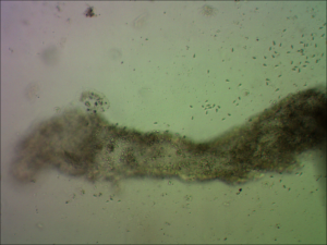 Large spores in the gut of Simocephalus sp. 10X objective