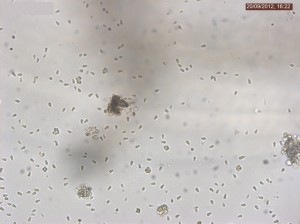 Single spores in Simocephalus sp. 40X objective