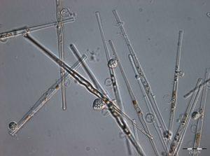 Synedra-chytrid